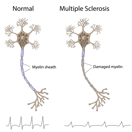 multiple sclerosis myelin