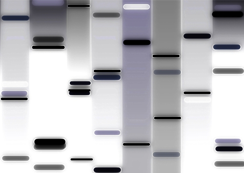 Inovio Pharmaceuticals MS DNA therapies