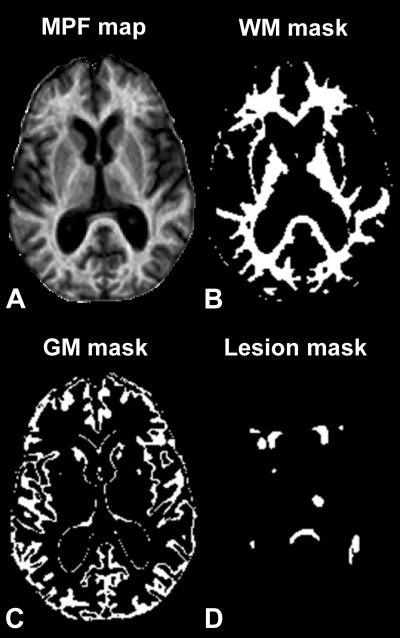 New MRI Study Shows Strong Correlation Of Gray Matter Myelin Loss To MS Disability