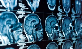 CorTechs Labs And Novartis Partner On Solutions for Quantifying Brain Volume In MS Patients