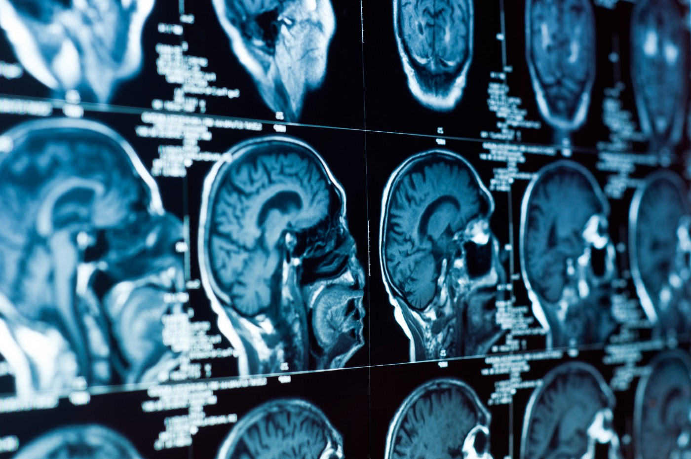 Multiple Sclerosis: How Can MRI Measurements be Improved in Trials?