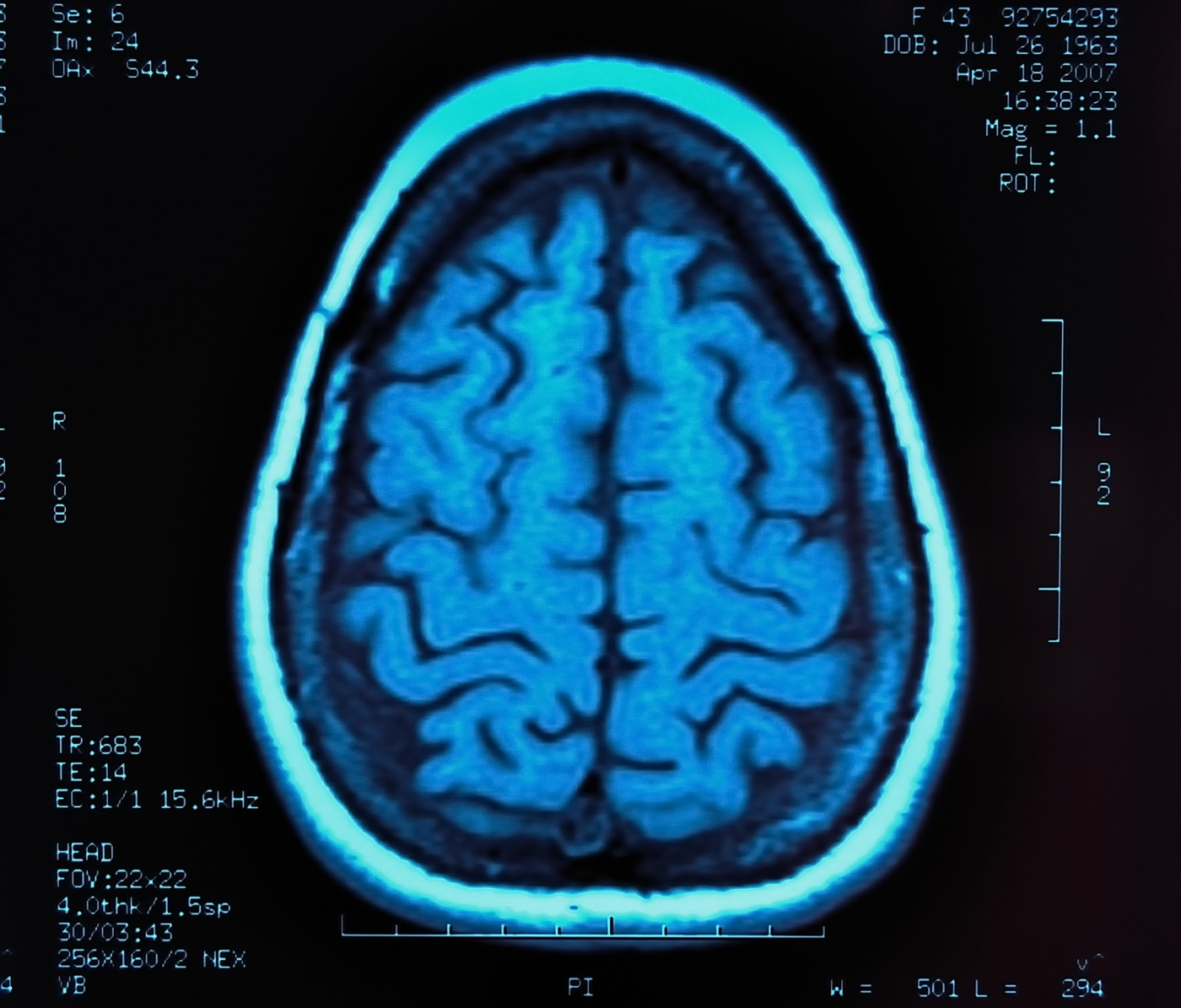 New Study Evaluates The Role of MRI in Monitoring MS Progression