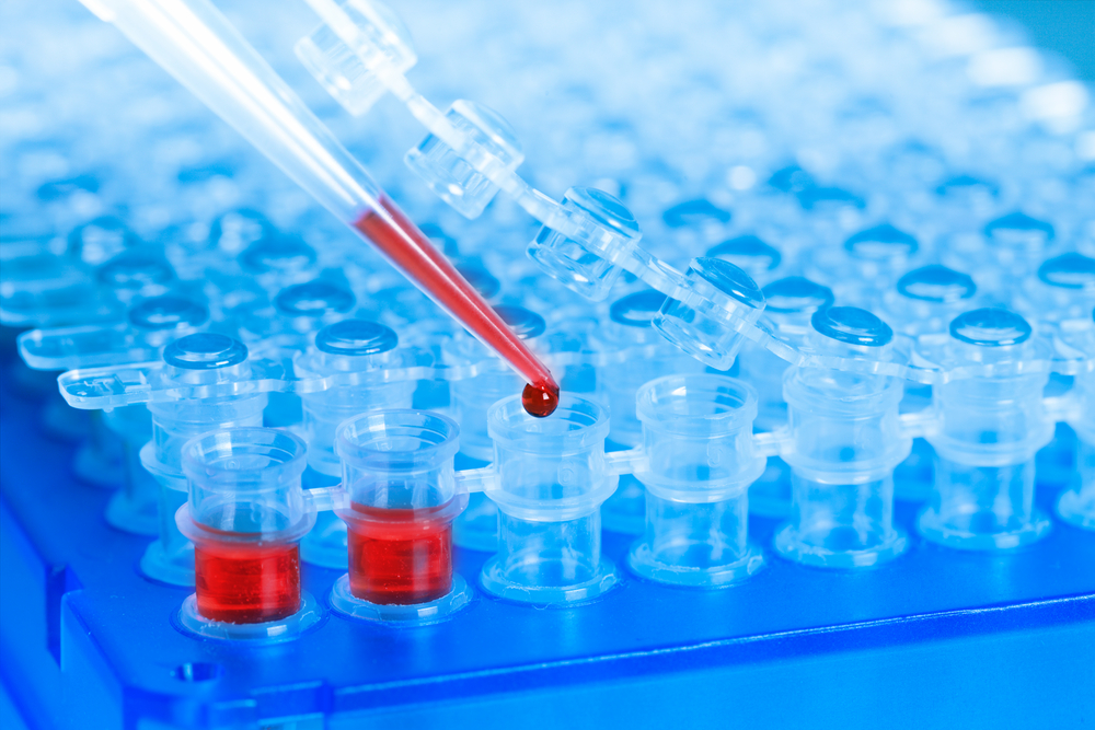 Amarantus Releases Preliminary Data From Blood-Based MS Diagnostic