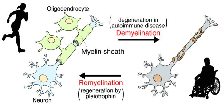 New Study Unravels How Myelin is Repaired, May Suggest New MS Treatments