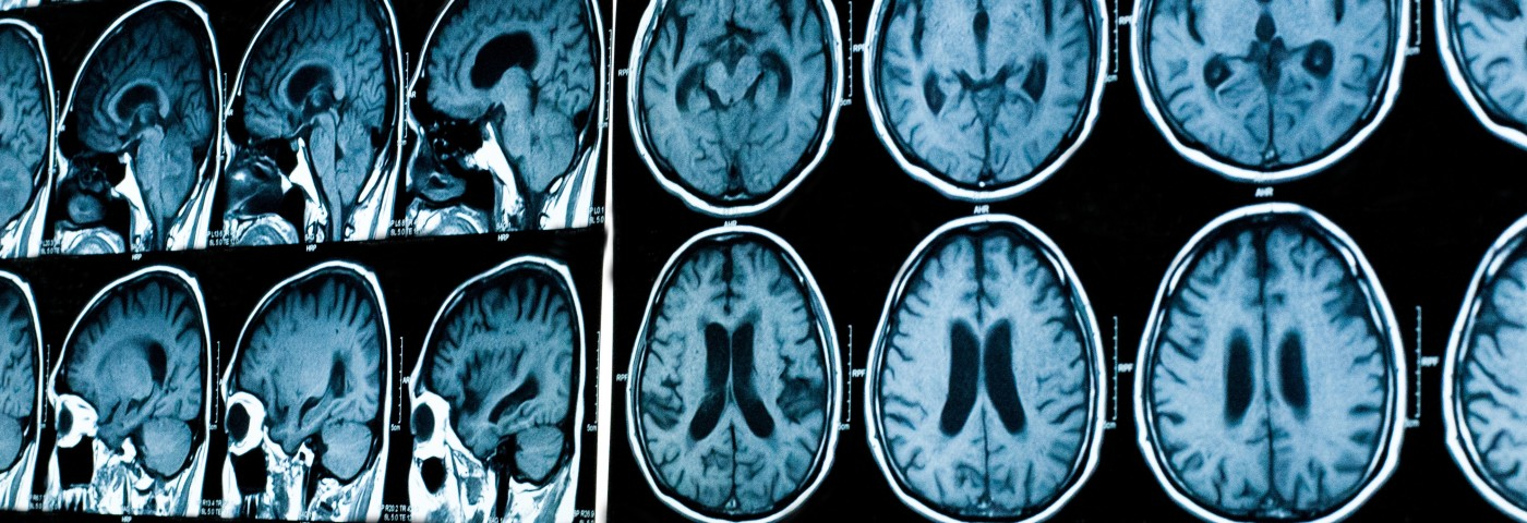 MS Therapy Aims to Slow Brain Inflammation with Fewer Side Effects