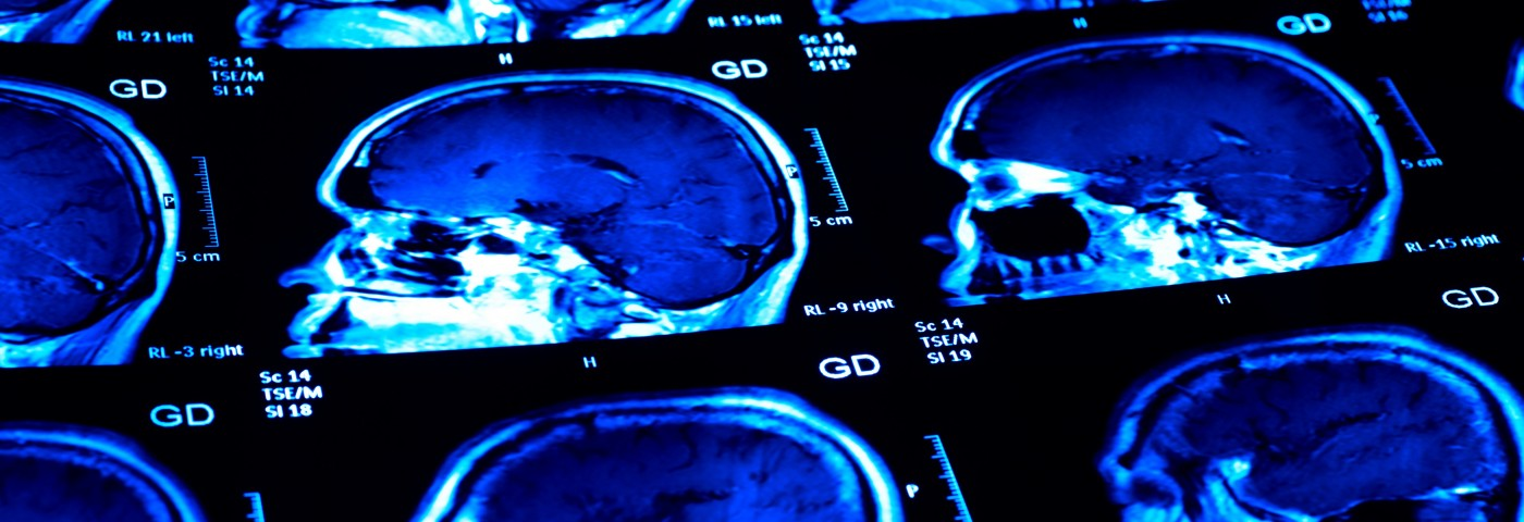 MS Researchers at Japanese Hospital to Use Novel MRI Technology