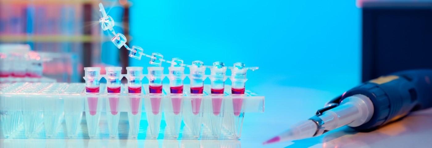 Simple MS Blood Test Said to Be Able to Diagnose Disease at Symptom Onset