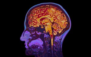 Brain entropy and MS