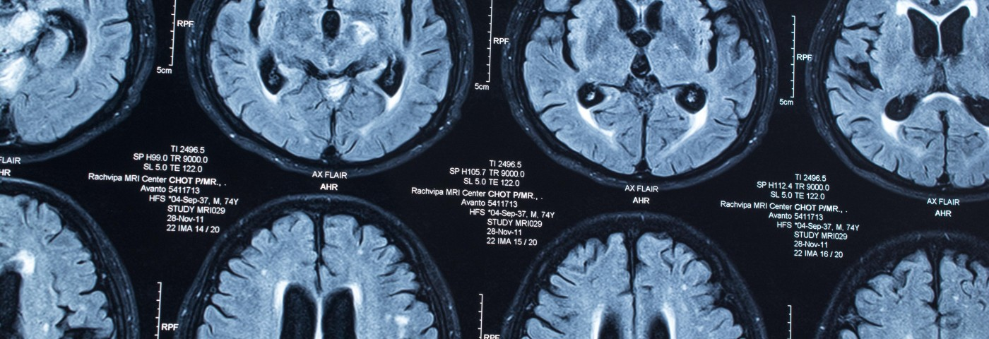 Severe Demyelination in Non-MS Patient After TNF-α Blocker Treatment Detailed in Study