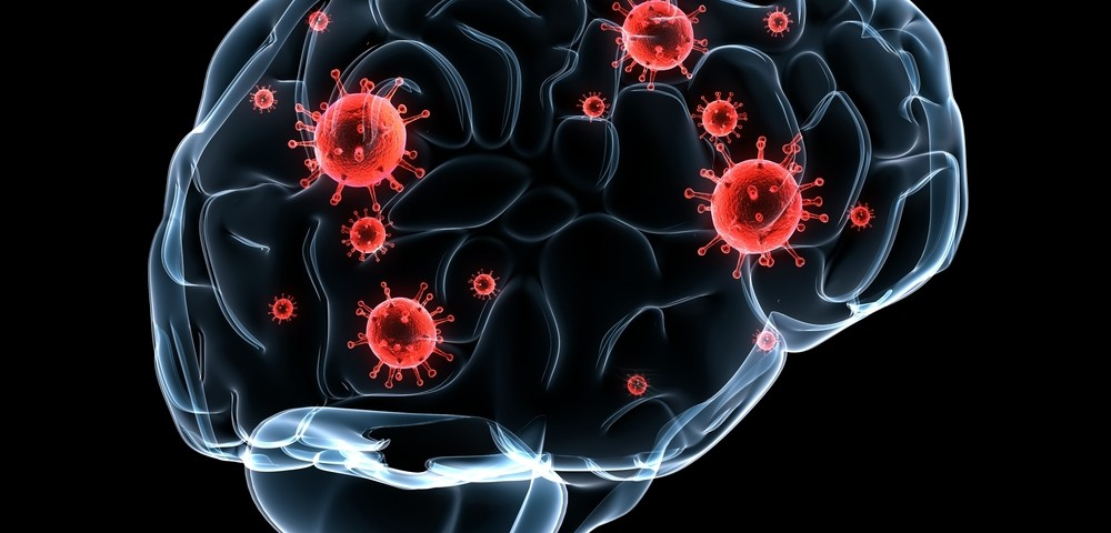 For MS Patients, New Guidelines for Controlling Rare Brain Infection Risk Under Tysabri Treatment