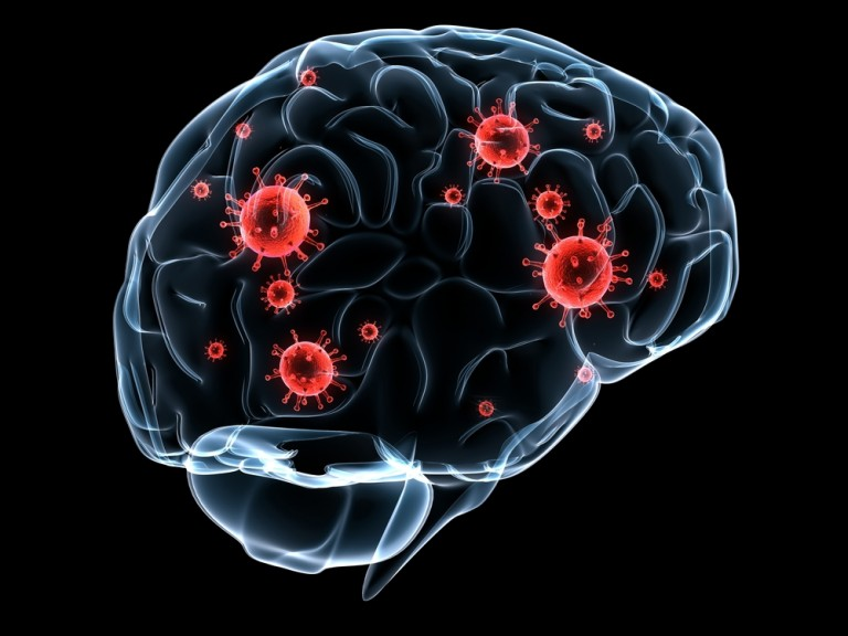 multiple sclerosis patients treated with Tysabri