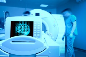Progressive MS and MRIs