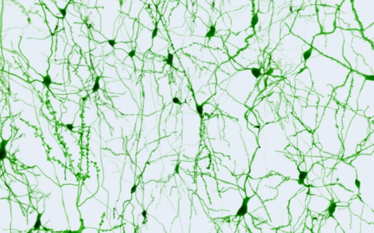 MS and neurons