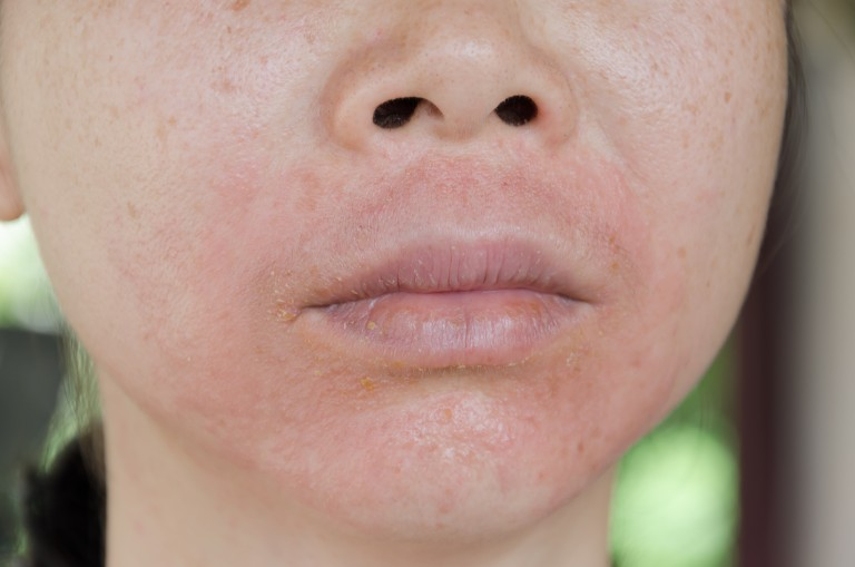 Rosacea and MS in women