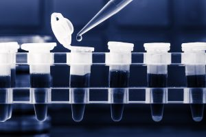 Micro-RNA Levels May Be Diagnostic Marker, Distinguishing MS from Other Neurological Diseases