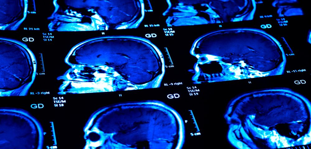 New MRI Method Has Potential to Map MS Progression and Guide Treatment