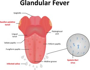 MS is Linked to Glandular Fever, I Have No Doubt