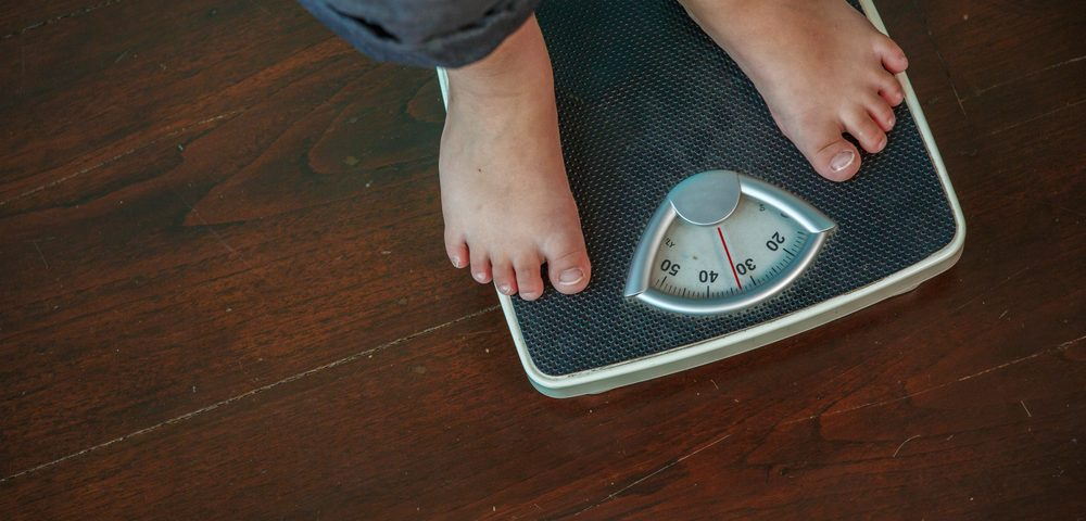 Childhood Obesity Linked to Higher Risk of Multiple Sclerosis, Possibly by Altering Vitamin D Levels