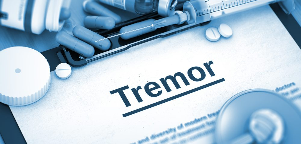 Tremors Linked to MS Poorly Treated with Symptomatic Medication, Study Finds
