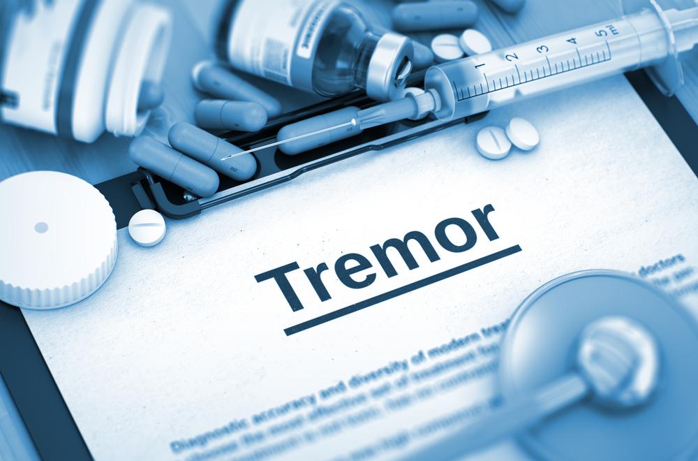tremor and MS