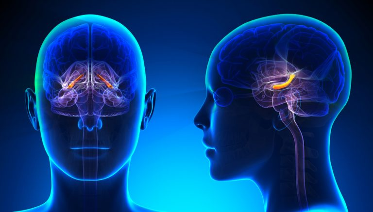 Inflammation in the hippocampus region of the brain in multiple sclerosis patients might explain the high rates of depression in this patient group.