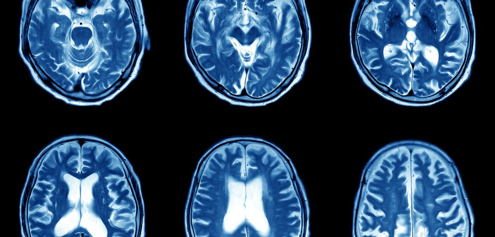 Brain Atrophy in MS Patients May Soon Be More Easily and Routinely Examined