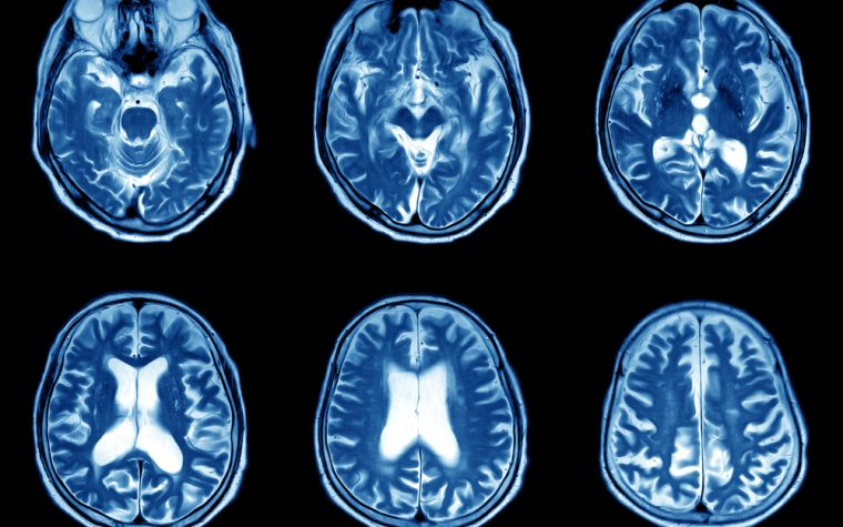 brain atrophy and MS