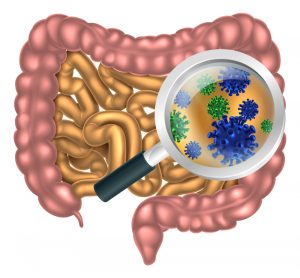 Gut Microbiome in MS Patients Seen to Favor Inflammatory Bacteria in Study