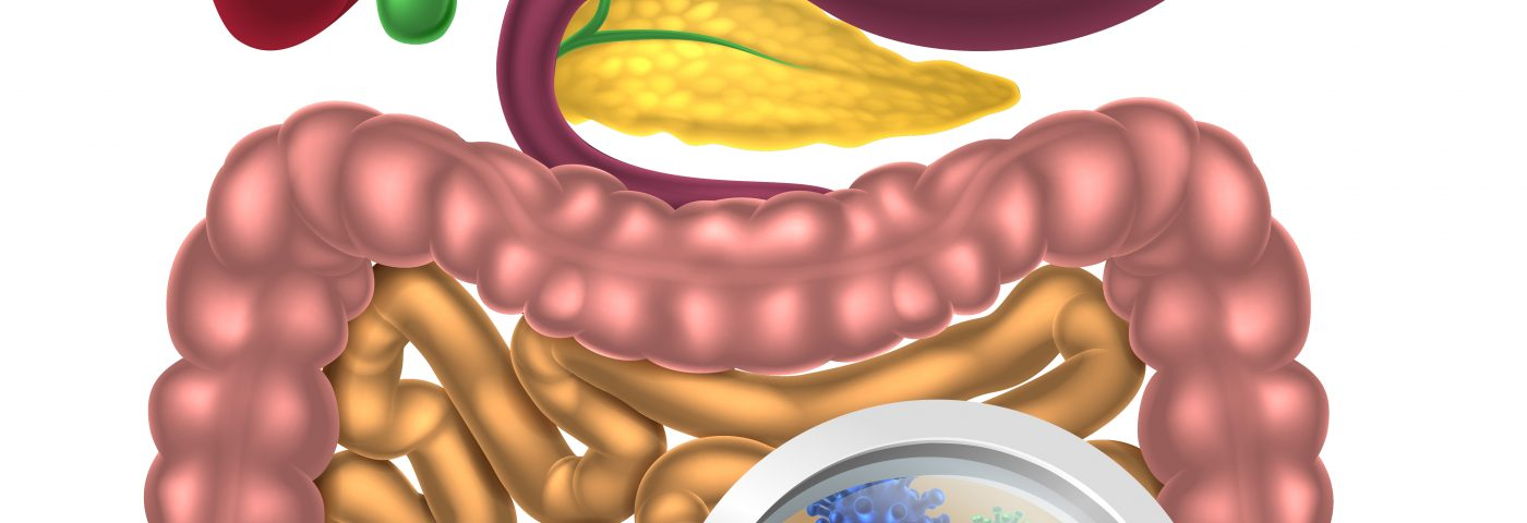 Gut Microbiota Seen to Differ in People with Relapsing MS, Especially Those with Active Disease