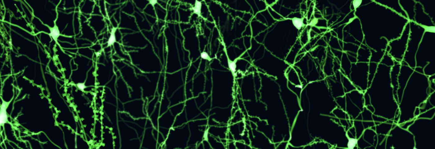 Instability of Myelin Membranes May Be True Trigger of MS, Study Reports