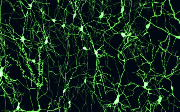 neurons and MS
