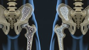 osteoporosis and MS