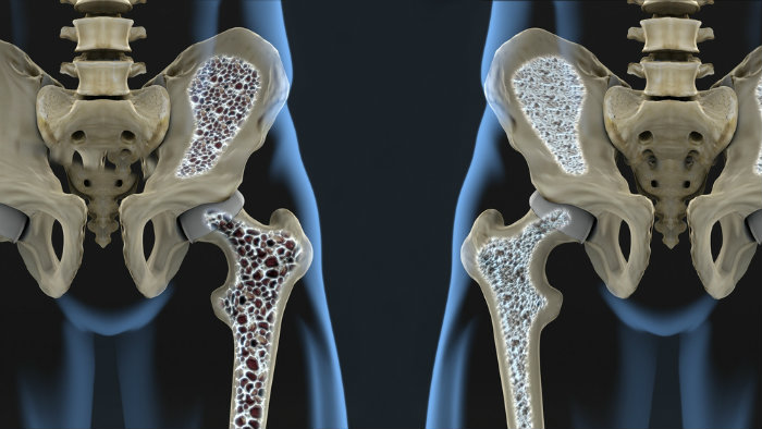 MS, Osteoporosis and Men – What a Guy Needs to Know