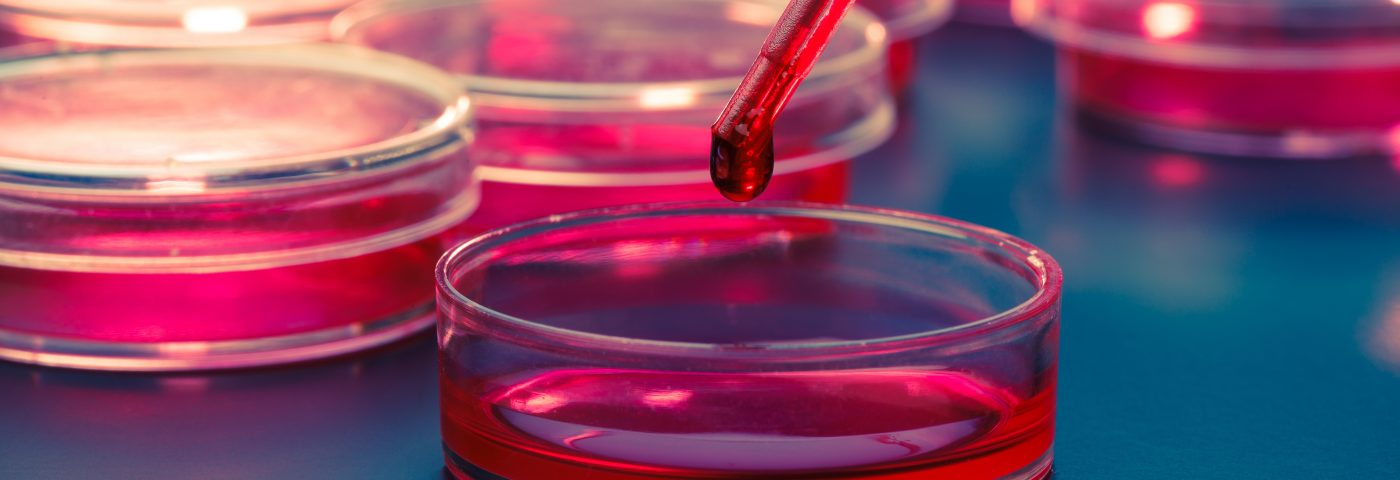 Selexis to Provide ImmuNext with Cell Lines for Research into Treatment for MS, Autoimmune Diseases