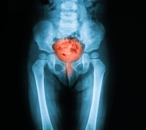 Bladder Infection in MS - Multiple Sclerosis News Today