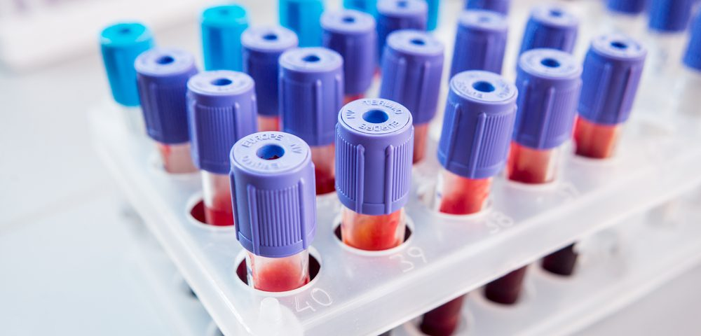 Tiny Molecules in Blood Could Be Biomarkers of MS Progression, Study Says