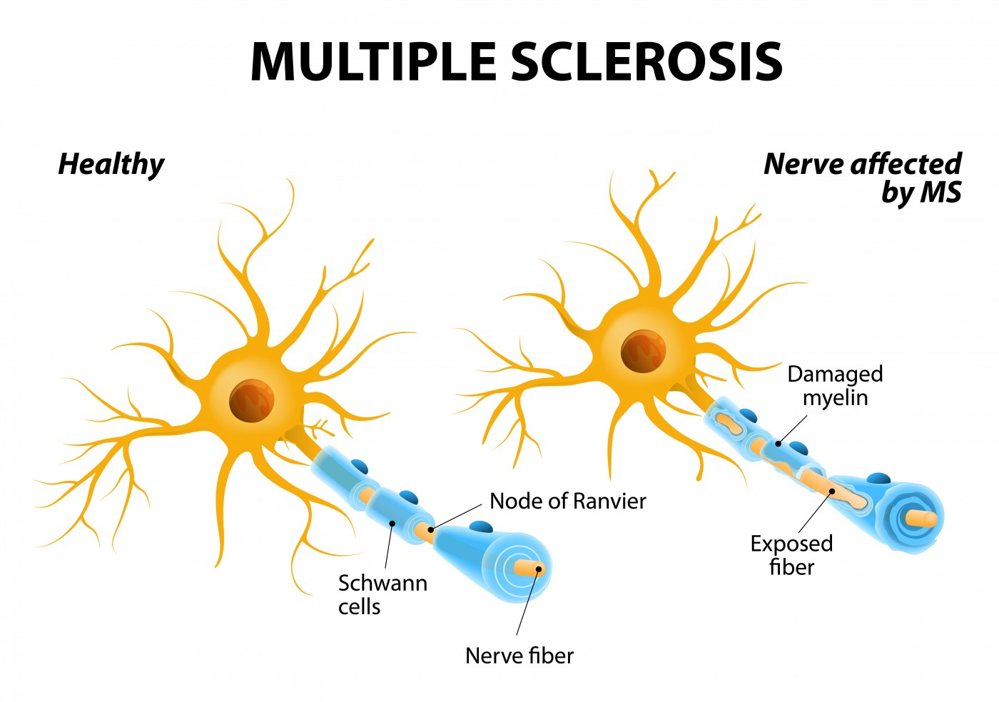 MS and seizures