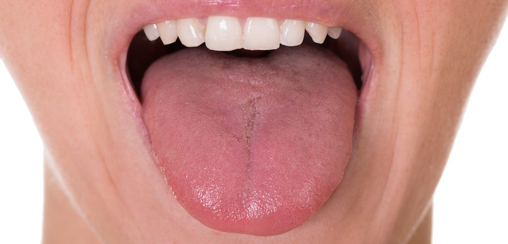 Tongue Stimulation Could Give MS Patients Better Rehabilitation Outcomes, Study Suggests