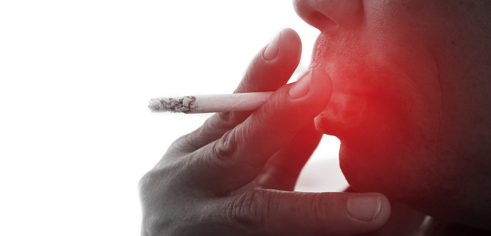 #ACTRIMS2017 – Smoking Significantly Worsens Quality of Life for MS Patients, Study Shows