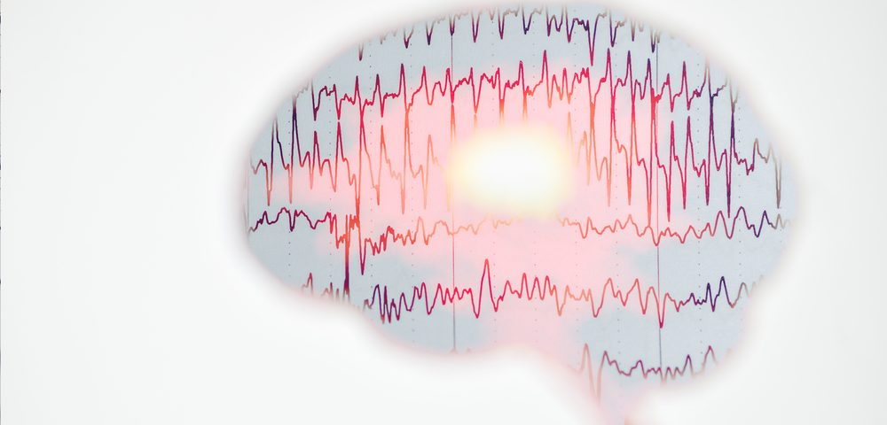 New tDCS Devices May Boost Cognition in MS — But Don't Use One at Home Without Guidance