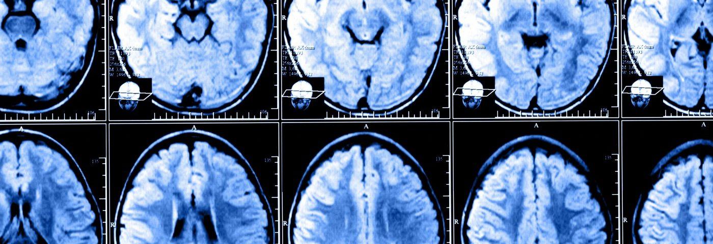 Early Rebif Treatment Prolongs Progression to Clinically Definite MS, Study Reports