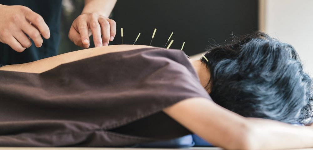 Making Some Valid Points About Acupuncture and MS