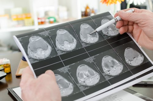 MSBase, Icometrix Collaborate on Global Imaging Project to Understand MS Progression