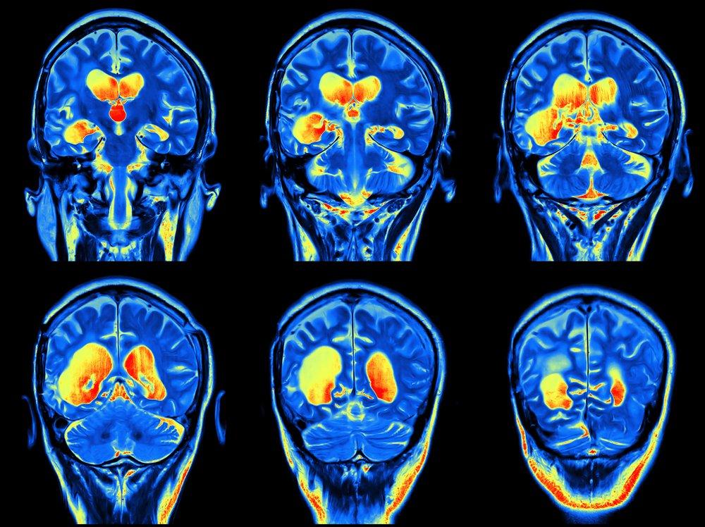 gadolinium and MRIs