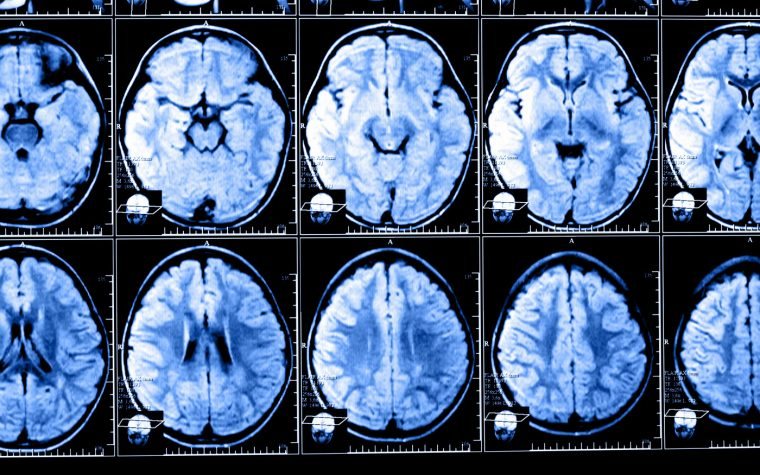 Study Draws Reverse Link Between Number of a Patient's MRI Scans a Doctor Checks and Worsened-MS Declarations