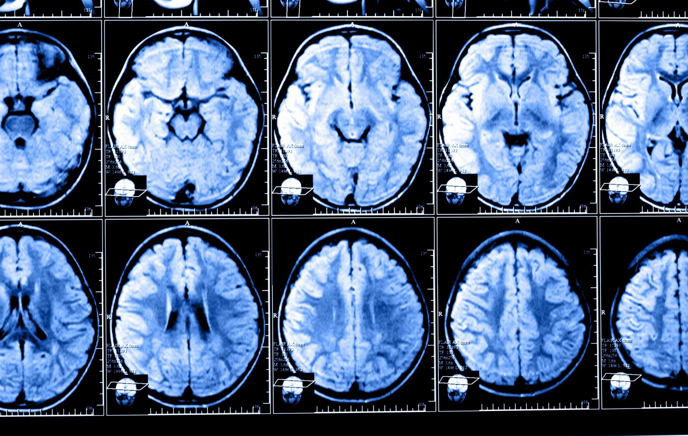 MRI scans and MS study