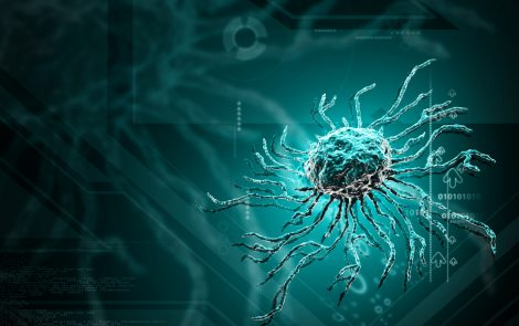Pre-Existing Inflammatory Diseases Reduce Therapeutic Potential of Stem Cells for MS Treatment, Study Shows