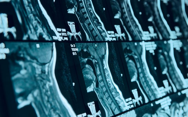 Study Examines Factors That Increase Risk of Progressing from RRMS to SPMS