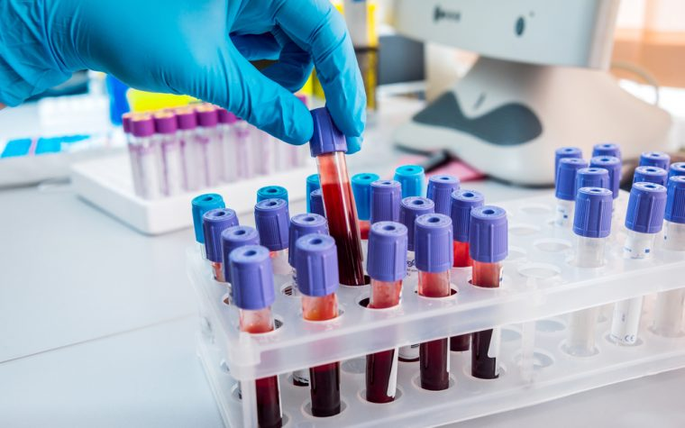 Diagnostic Blood Test May Be Able to Distinguish Between RRMS and PPMS, Researchers Say