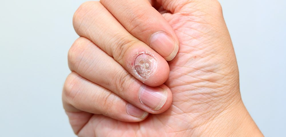 Multiple Sclerosis Therapy Aubagio May Cause Nail Loss, Researchers Report